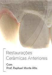Restaurações Cerâmicas Anteriores