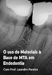 O Uso de Materiais à base de MTA em Endodontia