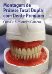 Montagem de Prótese Total Dupla com Dente Premium