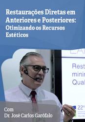 Restaurações Diretas em Anteriores e Posteriores: Otimizando recursos estéticos