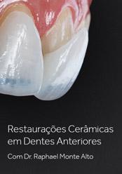 Restaurações Cerâmicas em Dentes Anteriores
