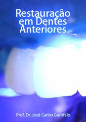 Restauração em Dentes Anteriores