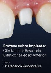 Prótese sobre Implante: Otimizando o Resultado Estético na Região Anterior