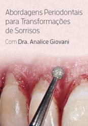 Abordagens Periodontais para Transformações de Sorrisos