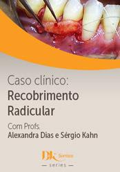 Caso Clínico: Recobrimento Radicular