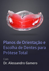 Planos de Orientação e Escolha de Dentes para Prótese Total