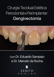 Cirurgia Tecidual Estética Periodontal e Periimplantar