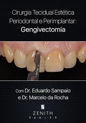 Cirurgia Tecidual Estética Periodontal e Peri-implantar