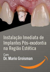 Instalação Imediata de Implantes Pós-exodontia na Região Estética