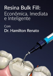 Econômica, Imediata e Inteligente: Resina Bulk Fill