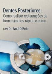Dentes Posteriores: Como realizar restaurações de forma simples, rápida e eficaz