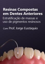 Resinas Compostas para Dentes Anteriores: Estratificação de Massas e Uso de Pigmentos Resinosos