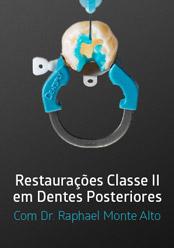 Restaurações Classe II em Dentes Posteriores