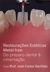 Restaurações Estéticas Metal-free: Do preparo dental à cimentação