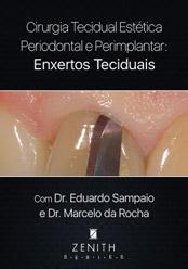 Cirurgia Tecidual Estética Periodontal e Periimplantar: Enxertos Teciduais