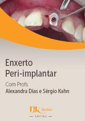 Enxerto Peri-implantar
