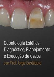 Odontologia Estética: Diagnóstico, planejamento e execução de casos