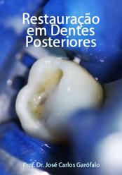 Restauração em Dentes Posteriores