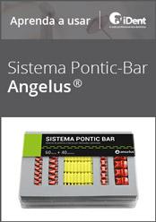 Aprenda a usar: Sistema Pontic Bar da Angelus