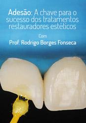 Adesão: A chave para o sucesso dos tratamentos restauradores estéticos