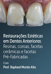 Restaurações Estéticas em Dentes Anteriores: Resinas, coroas, facetas cerâmicas e facetas Pré-Fabricadas