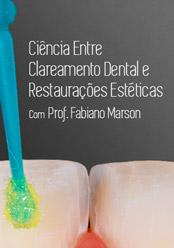 Ciência Entre Clareamento Dental e Restaurações Estéticas