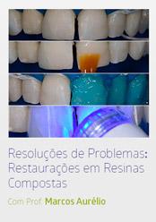 Resoluções de Problemas com Restaurações em Resinas Compostas