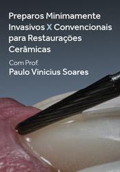 Preparos Minimamente Invasivos x Convencionais para Restaurações Cerâmicas