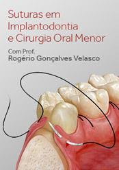 Suturas em Implantodontia e Cirurgia Oral Menor