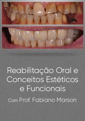 Reabilitação Oral e Conceitos Estéticos e Funcionais