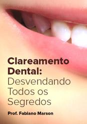 Clareamento Dental: Desvendando todos os segredos