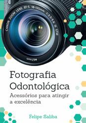 Fotografia Odontológica: Acessórios para atingir a excelência