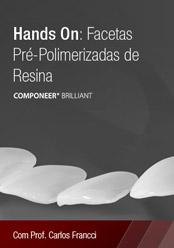 Hands On: Facetas Pré-Polimerizadas em Resina