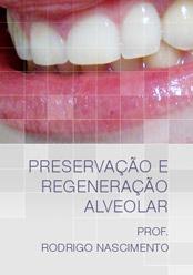 Preservação e Regeneração Alveolar