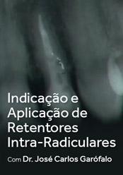 Indicação e aplicação de Retentores Intra-Radiculares
